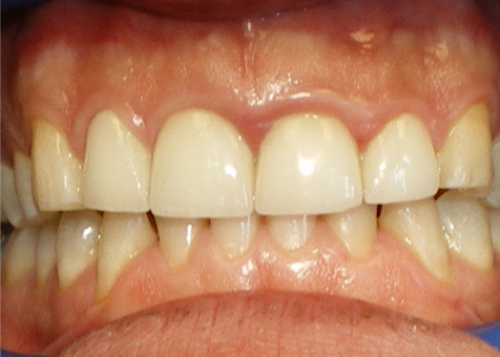 After-In Office Teeth Whitening and Crowns