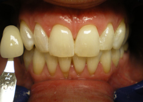 Before-In OfficeTeeth Whitening