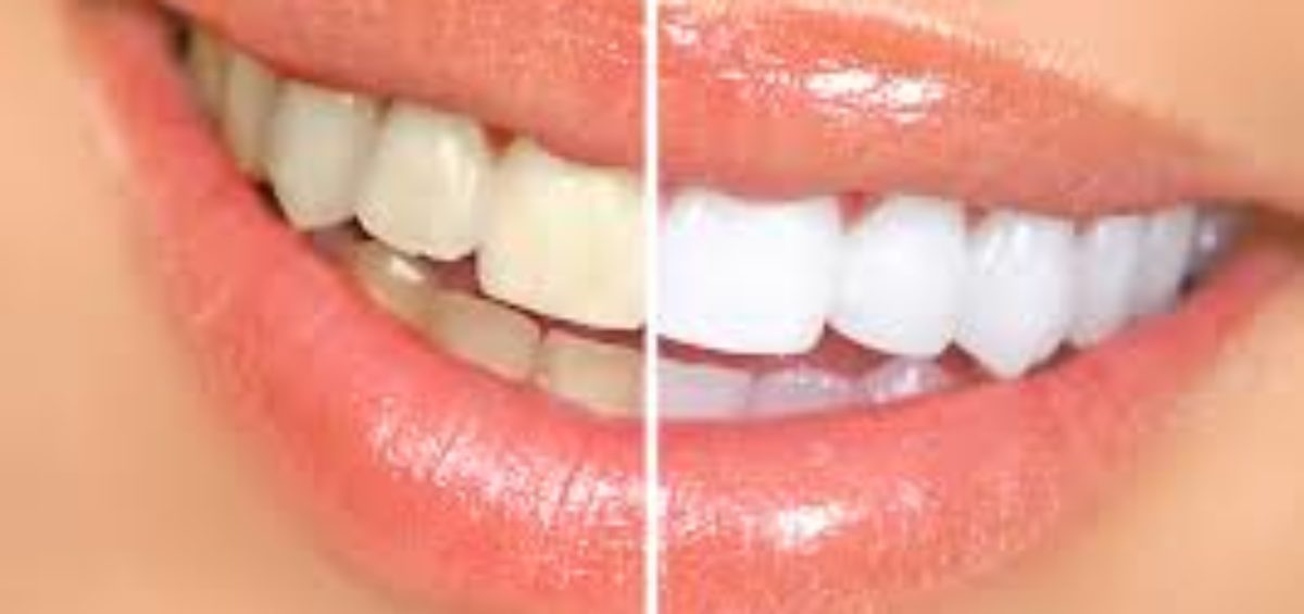 White Teeth Before and After
