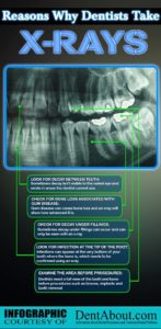Why Dentists Take X-Rays Infographic
