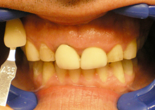 Before-In Office Teeth Whitening and Crowns