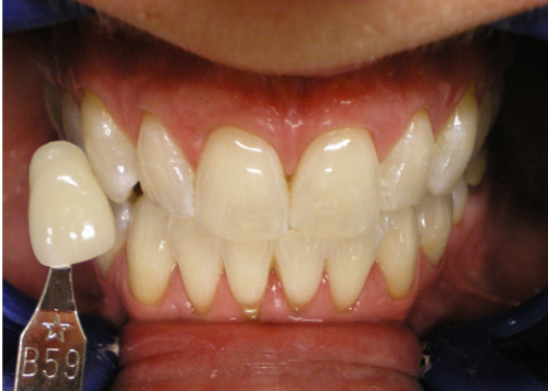 After-In OfficeTeeth Whitening