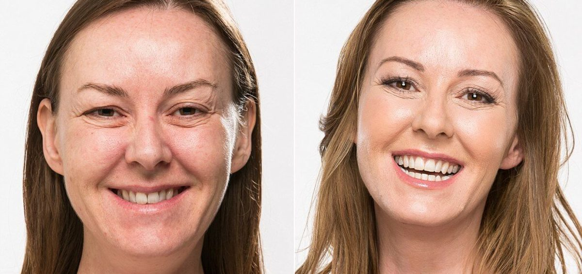 Look Ten Years Younger With Whiter Teeth